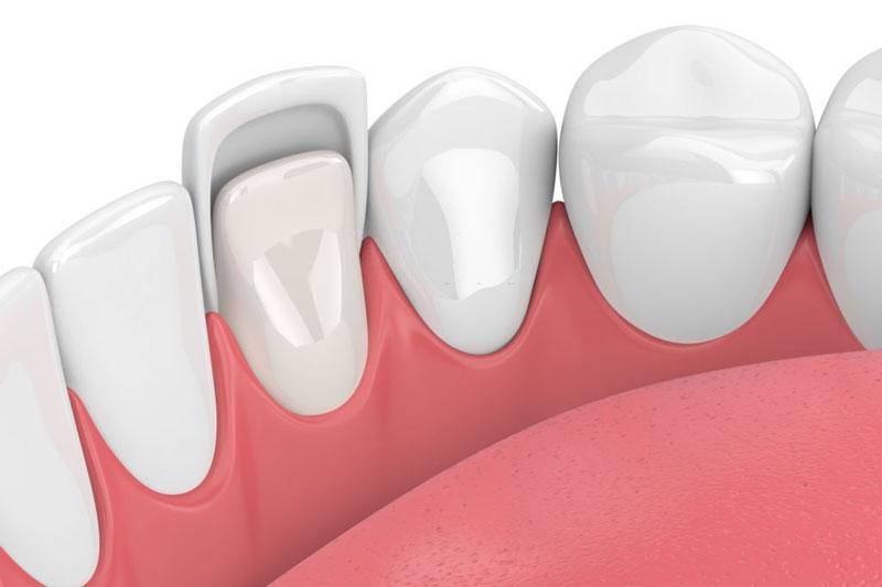 Bọc răng sứ không mài giảm thiểu rủi do khi mài răng