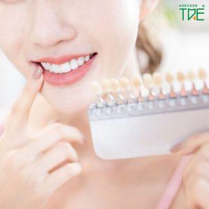 Bọc răng sứ màu nào đẹp?