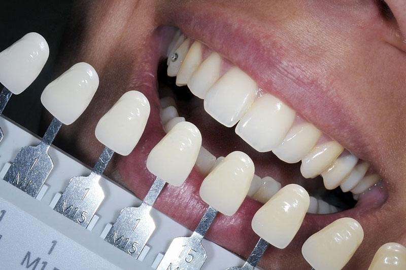 Lựa chọn màu răng sứ dựa trên màu răng thật
