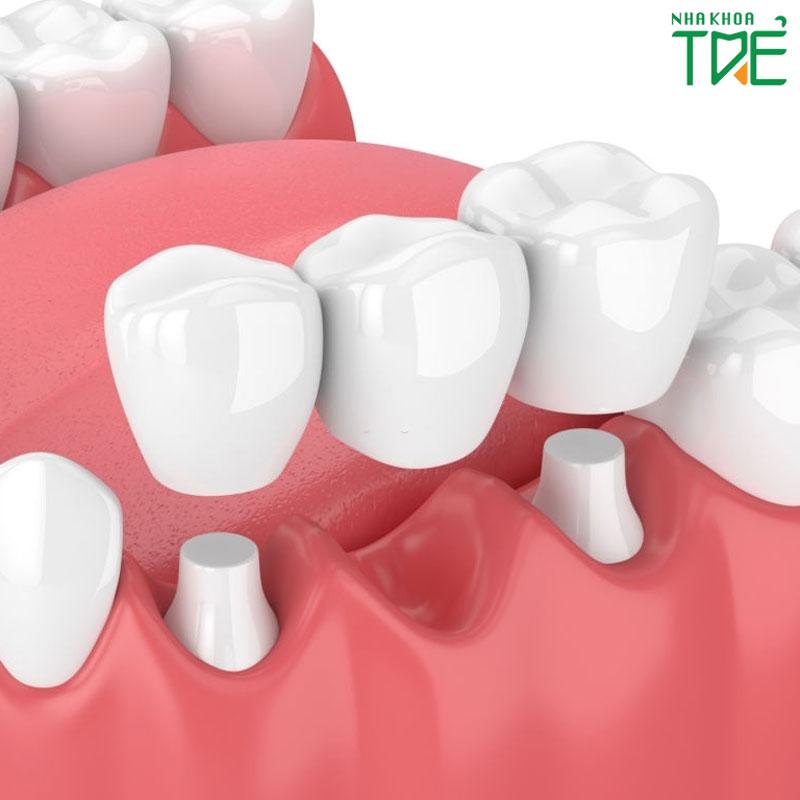Làm cầu răng sứ giá bao nhiêu tiền năm 2021?