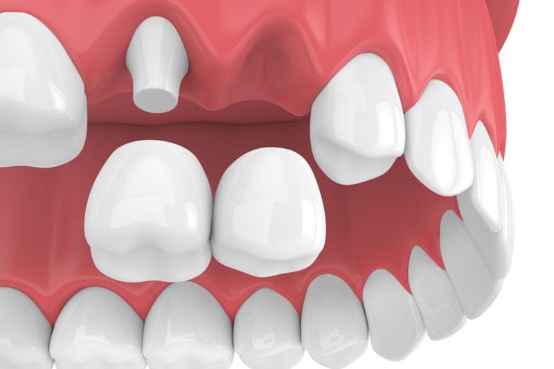 Cần tối thiểu 2 mão răng sứ để phục hình 1 răng mất