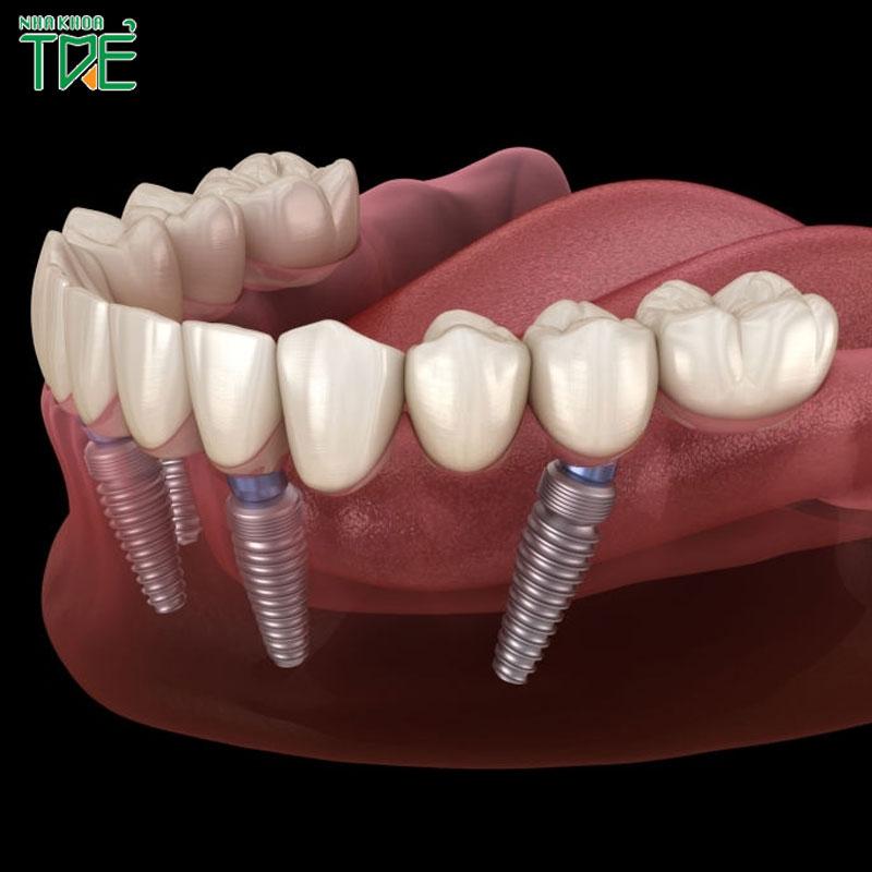 Cấy ghép All On 4 – Phục hình cho người mất răng toàn hàm