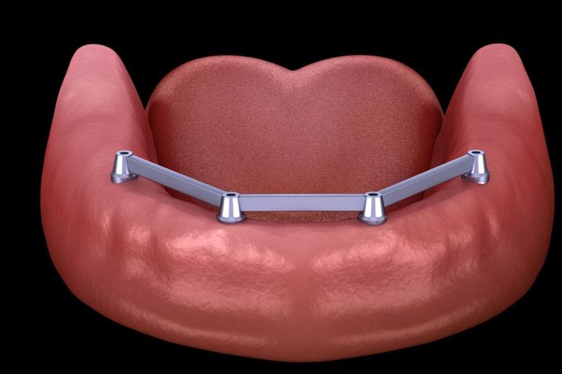 Các trụ Implant liên kết chặt chẽ tạo thành một thể thống nhất