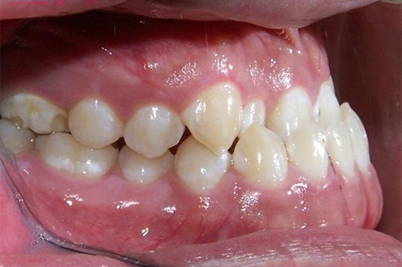 Khớp cắn ngược ảnh hưởng nhiều đến sức khỏe răng miệng