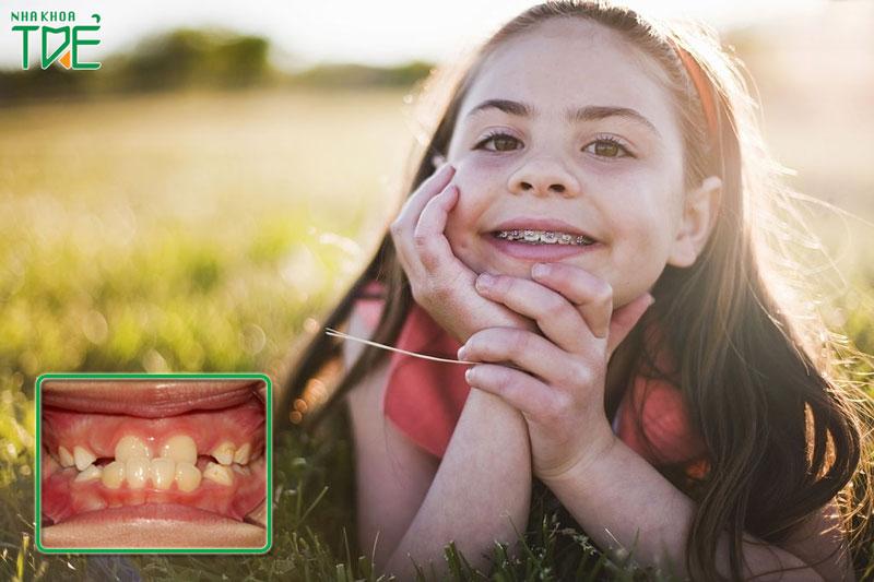 Chỉnh răng móm cho bé như thế nào?