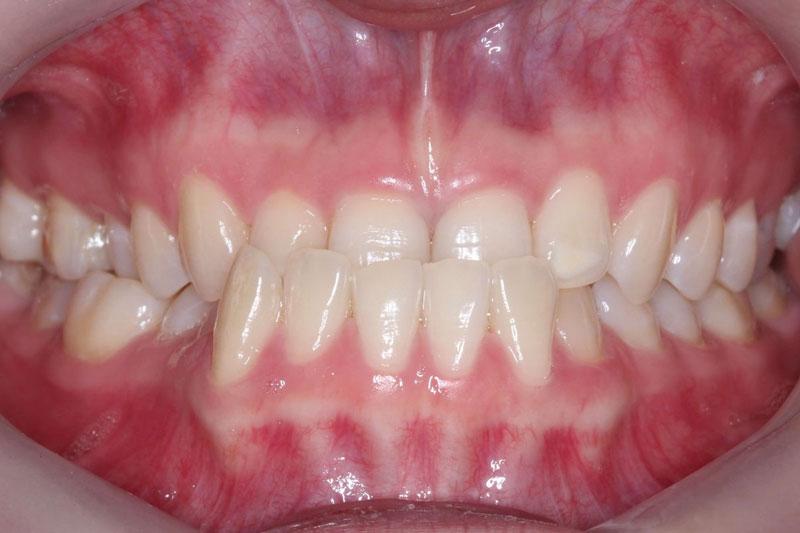 Răng móm ở trẻ gây ra nhiều ảnh hưởng nghiệm trọng