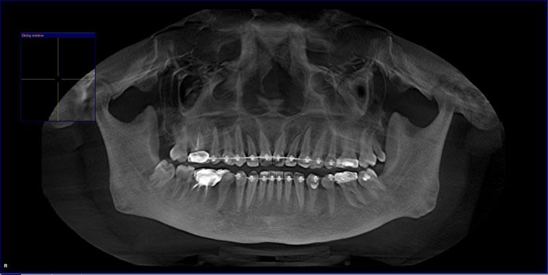 Chụp X-quang răng cho bé nhằm hỗ trợ niềng răng chỉnh nha