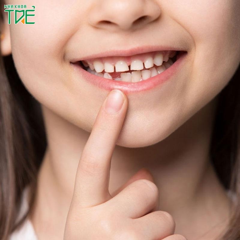 Có nên nhổ răng sữa sớm cho bé không?