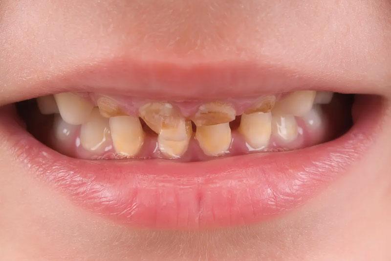 Răng bị sâu hỏng nặng nên nhổ răng sữa sớm