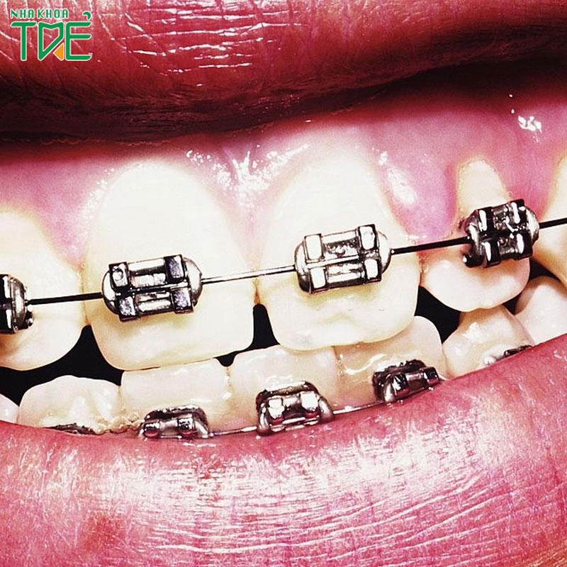 Có nên niềng răng mắc cài thường không? Giá mắc cài thường bao nhiêu tiền?