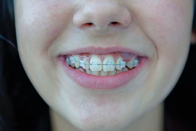 Niềng răng mắc cài sứ đạt tính thẩm mỹ cao hơn mắc cài kim loại