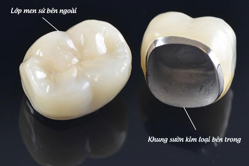 Răng sứ kim loại có lớp sườn kim loại bên trong