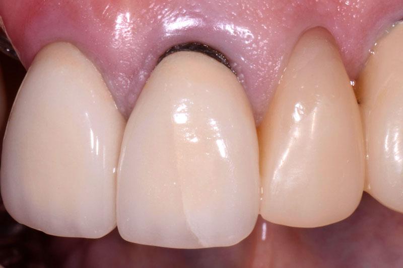 Sử dung răng sứ kim loại lâu ngày có hiện tượng đen viền nướu