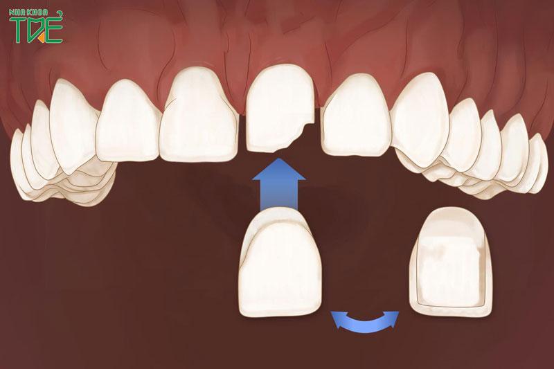 Dán răng sứ cho răng cửa giá bao nhiêu tiền?