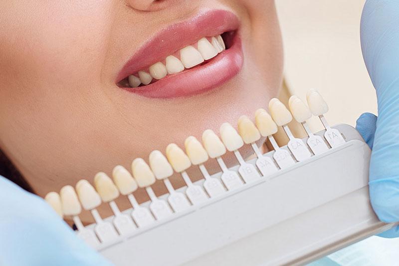 Dán răng sứ cho răng cửa đảm bảo màu sắc tương tự răng thật
