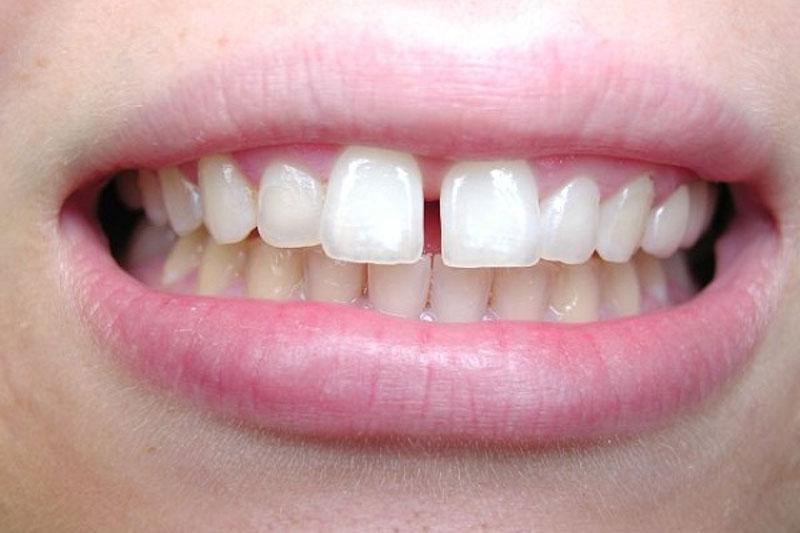 Nên dán răng sứ cho răng cửa bị thưa