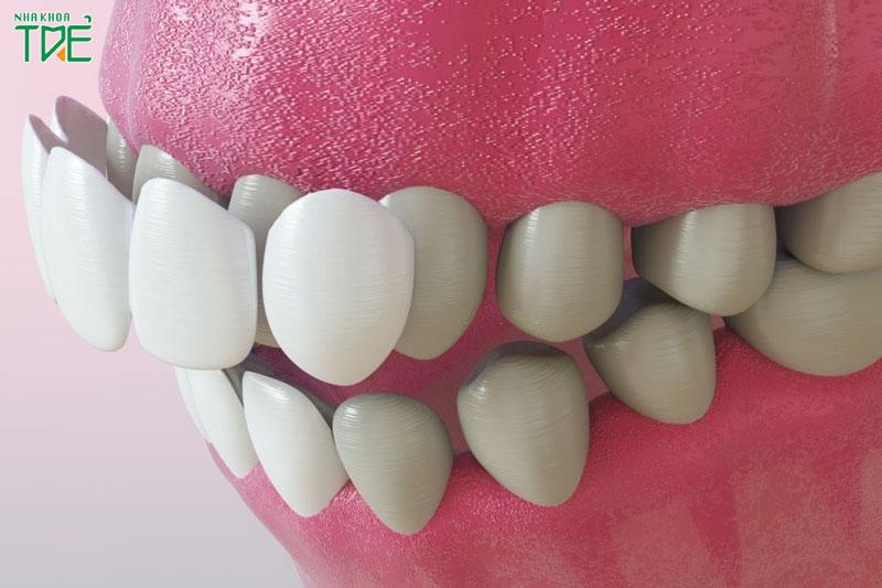 Dán răng sứ có phải mài răng không?