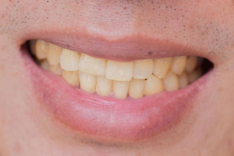 Răng nhiễm màu nên dán răng sứ để khắc phục