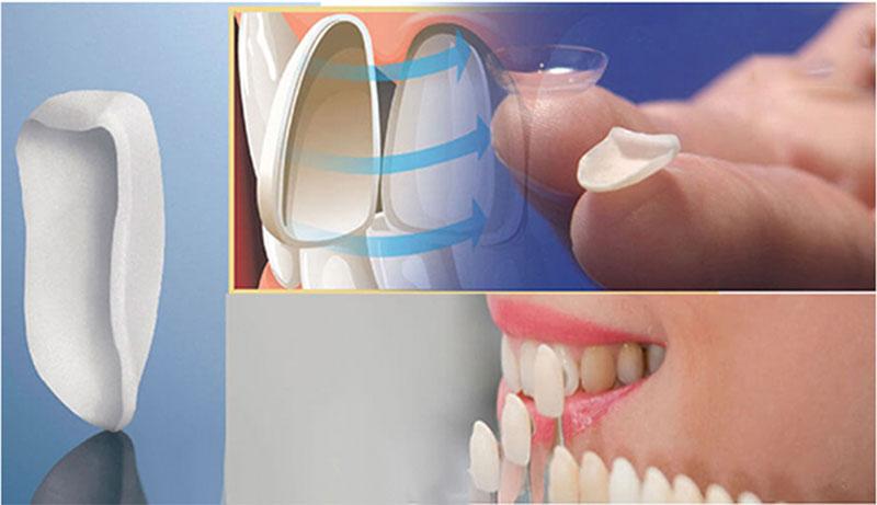 Đảm bảo răng dứ được dán sát khít và vừa vặn với răng thật