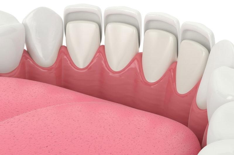 Dán răng sứ được bao lâu thì phải thay mới?