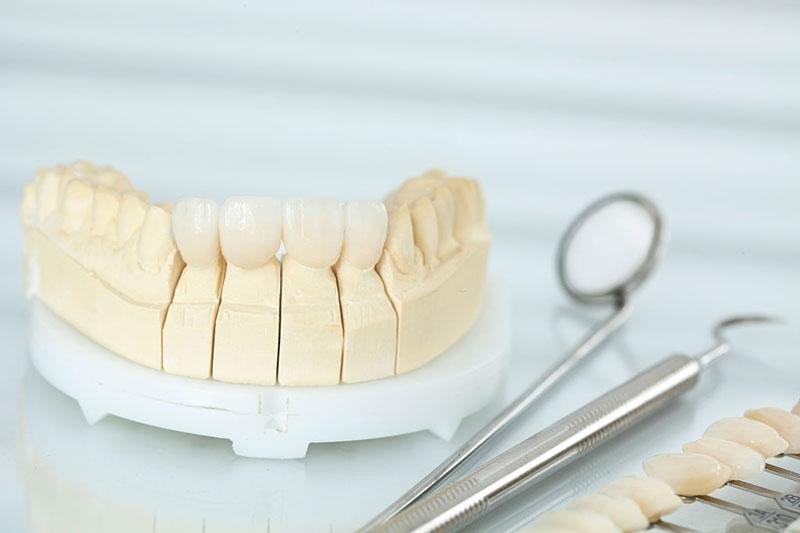 Dán răng sứ được bao lâu phụ thuộc vào loại răng sứ bạn lựa chọn