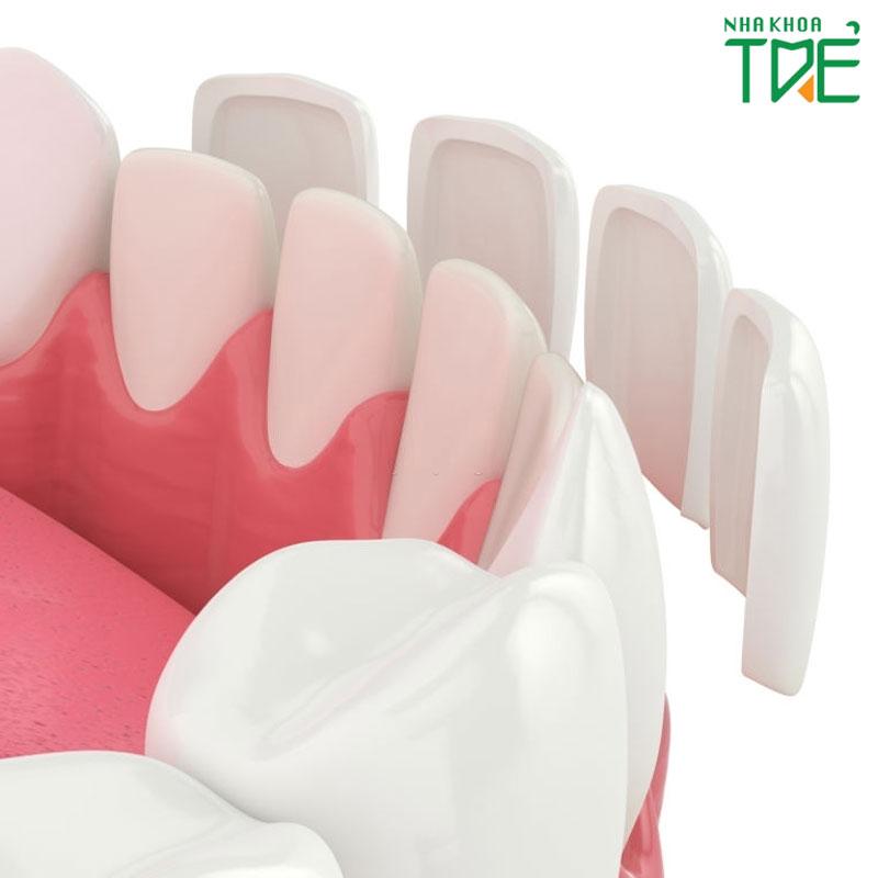 Dán răng sứ Veneer có hại không?