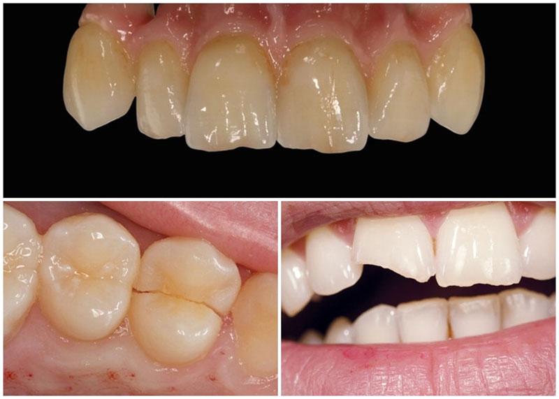 Dán răng sứ kém chất lượng dẫn đến nhiều biến chứng răng miệng