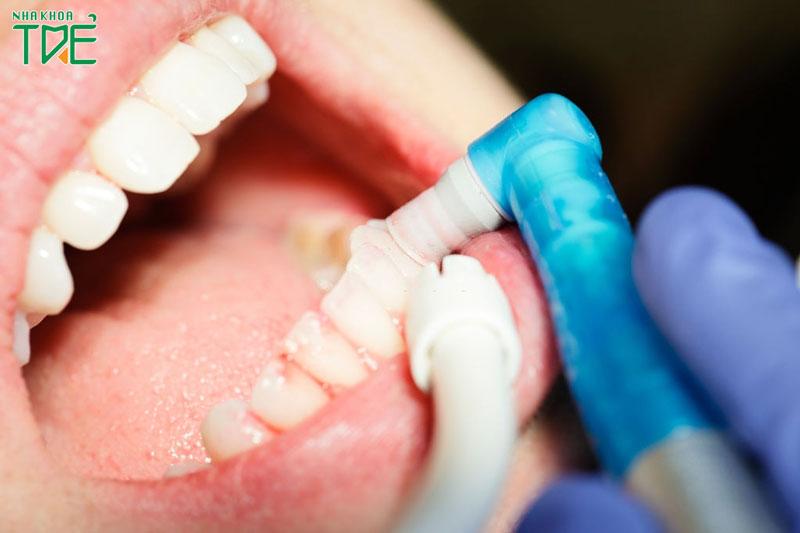 Đánh bóng răng là gì? Giá đánh bóng là bao nhiêu?