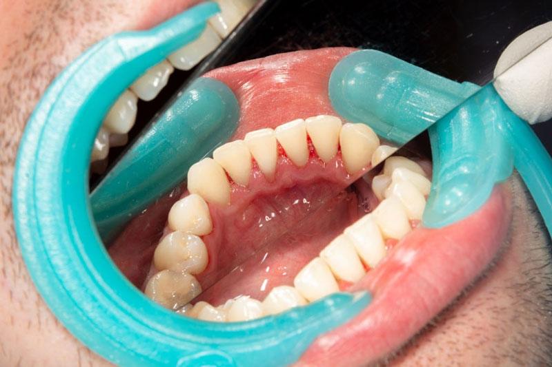 Đánh bóng răng sẽ giúp răng trắng sáng hơn