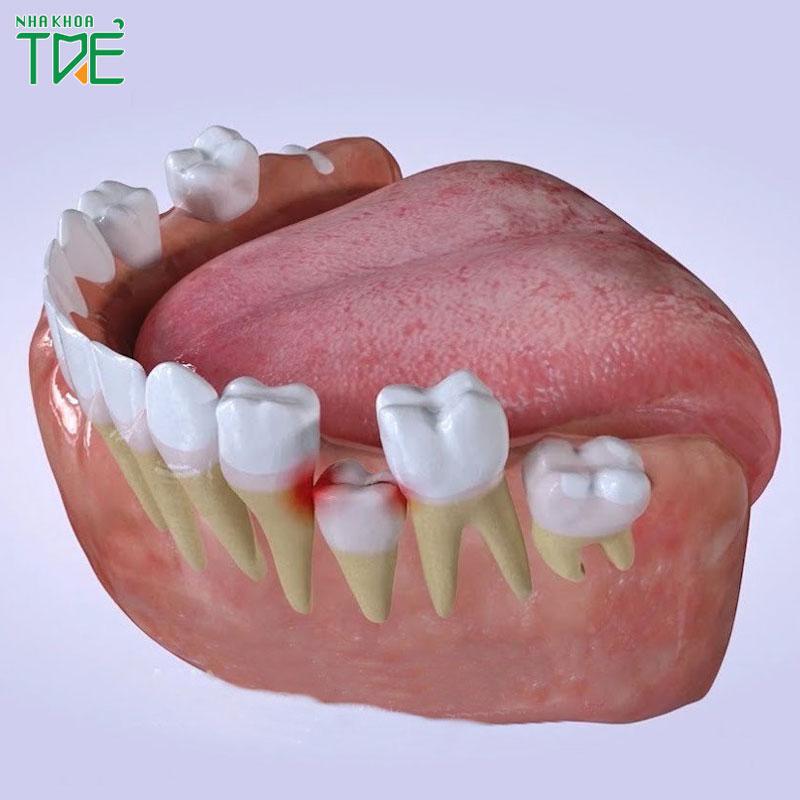 Bé mọc răng hàm: Cách nhận biết và những lưu ý quan trọng