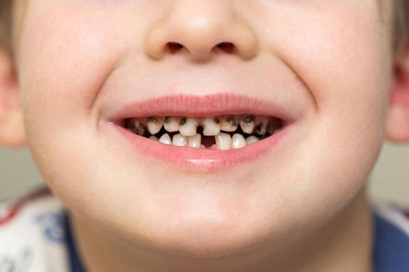 Sâu răng khiến bé bị hôi miệng