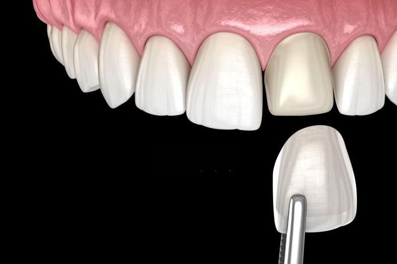 Chọn phương pháp phù hợp với tình trạng răng
