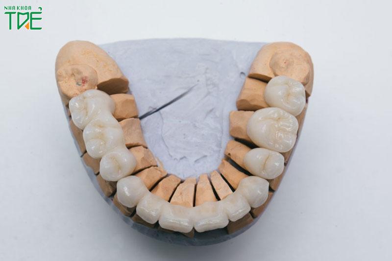 Làm răng sứ mất bao lâu thì hoàn tất?