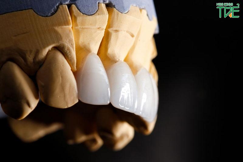 Làm răng sứ thẩm mỹ có đau không?