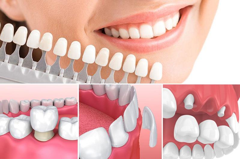 Các phương pháp làm răng sứ thẩm mỹ