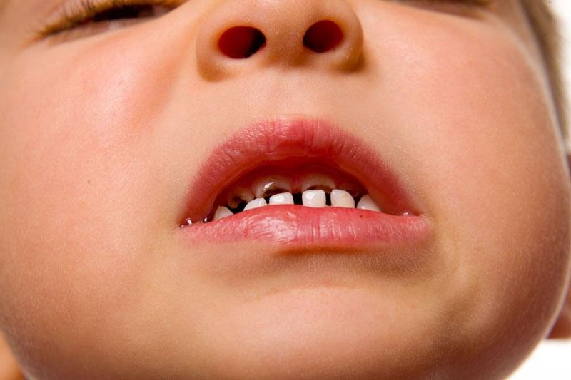 Viêm tủy răng chủ yếu do bệnh lý sâu răng