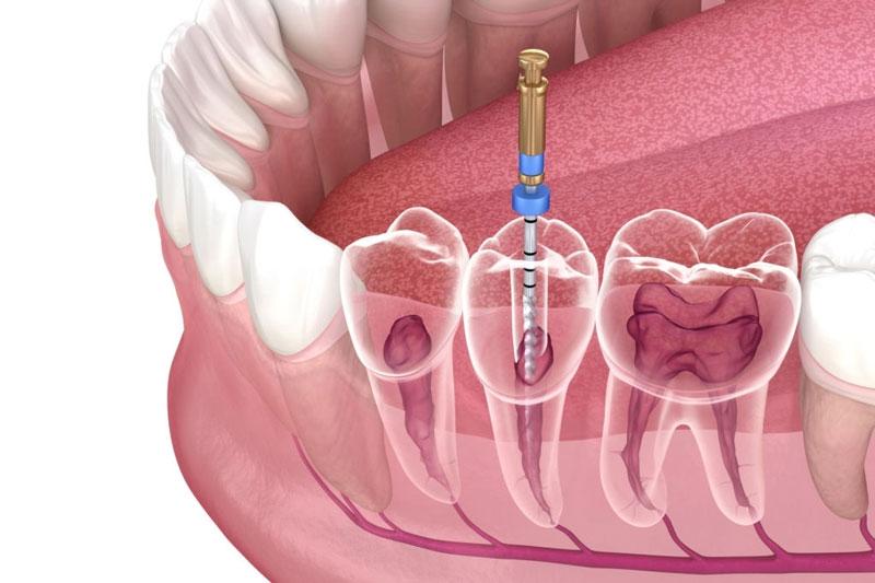 Lấy tủy răng là gì? Lấy tủy răng mất bao lâu thì xong?