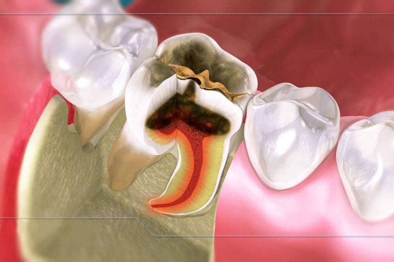 Răng bị chết tủy, hỏng tủy cần điều trị tủy răng