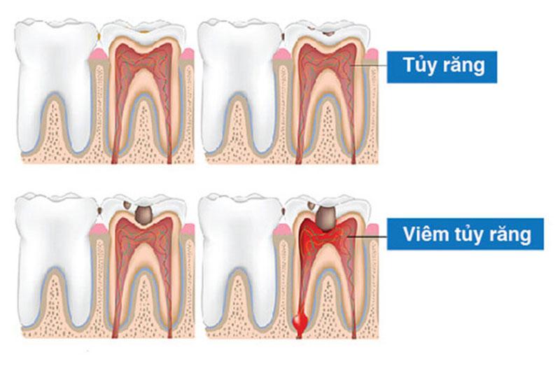 Răng viêm tủy cần được điều trị