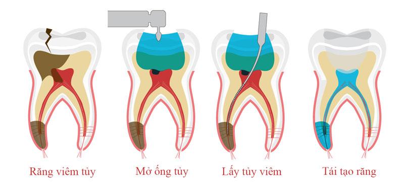 Quy trình lấy tủy răng viêm nhiễm, hoại tử