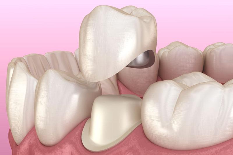 Nên bọc răng sứ sau chữa tủy để bảo vệ răng thật