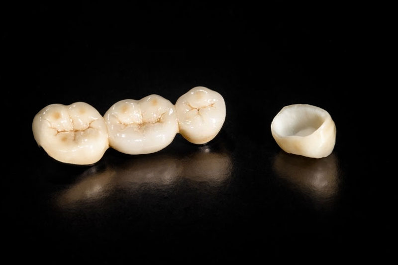 Mão răng sứ được thiết kế rỗng ruột