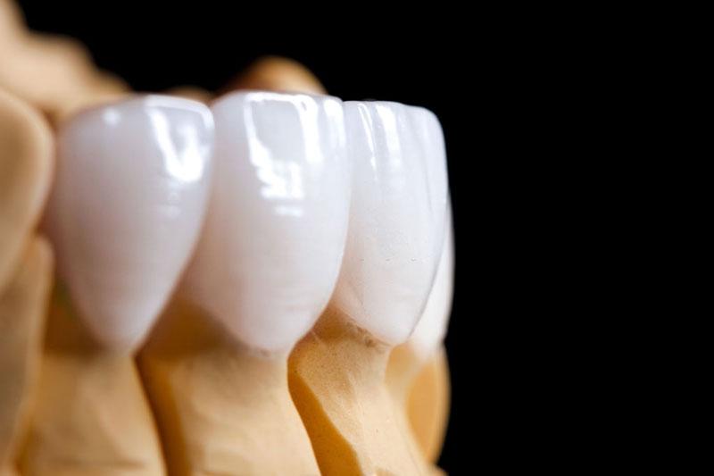 Răng sứ toàn sứ đảm bảo thẩm mỹ cao hơn