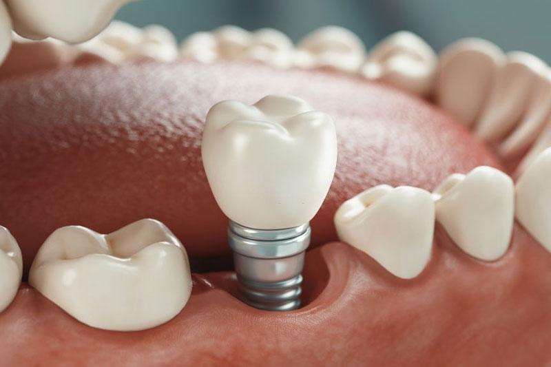 Trồng răng Implant phục hình răng mất tối ưu