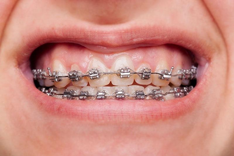 Nên niềng răng để khắc phục các răng mọc lệch