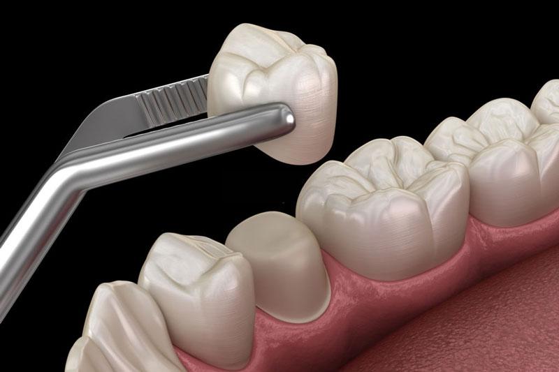Bọc răng sứ cho các trường hợp răng lệch lạc nhẹ
