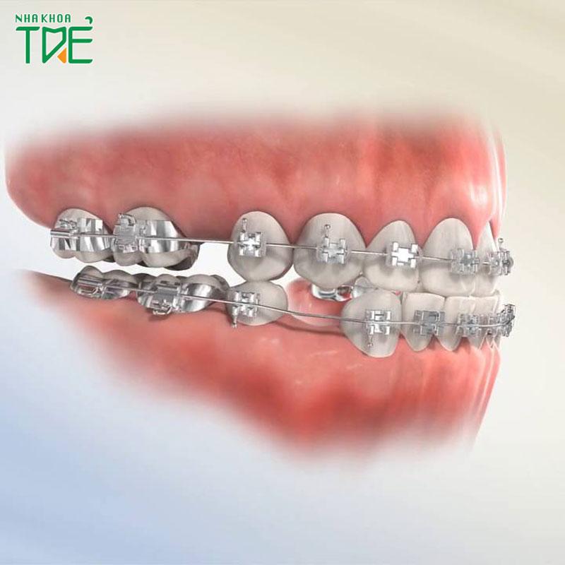 Nhổ 4 răng hay nhổ 8 cái răng để niềng cần lưu ý những gì?