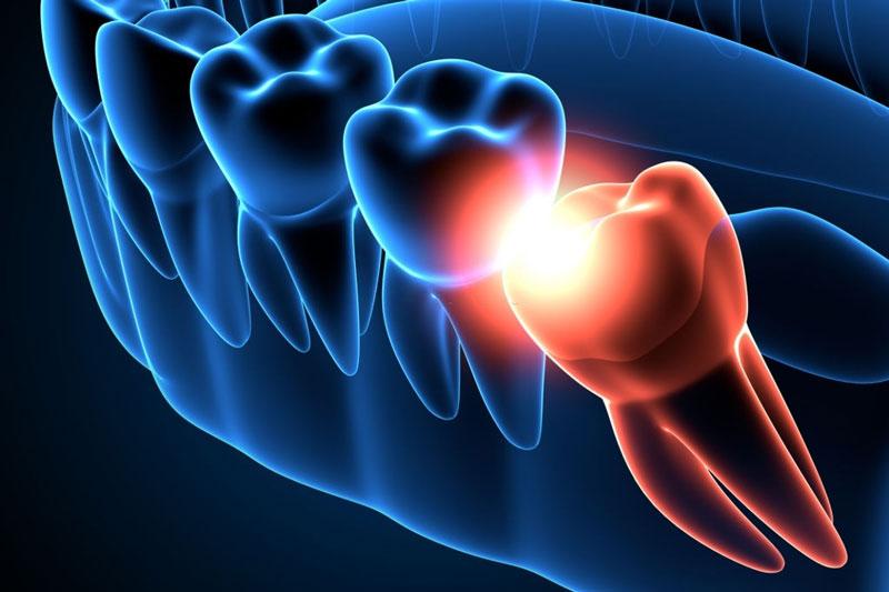 Răng khôn mọc lệch, mọc ngầm gây ra nhiều biến chứng nguy hiểm