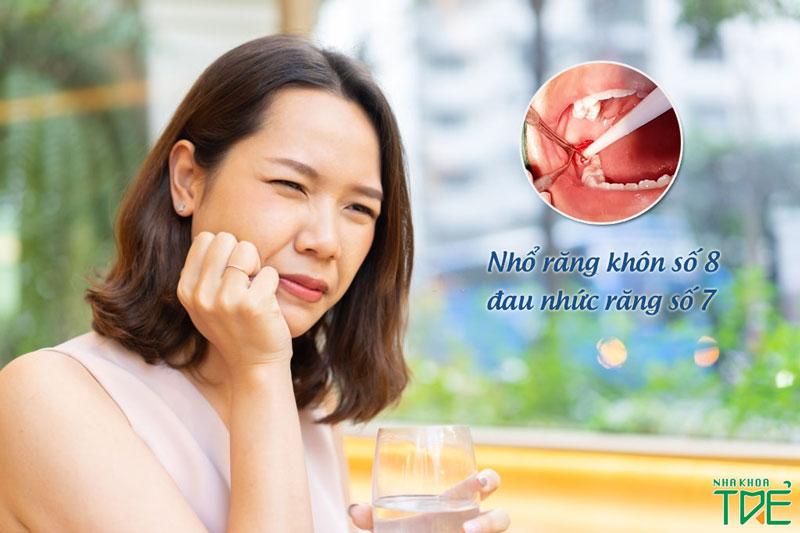 Biến chứng nhổ răng khôn làm đau răng số 7 (răng số 7 lung lay)
