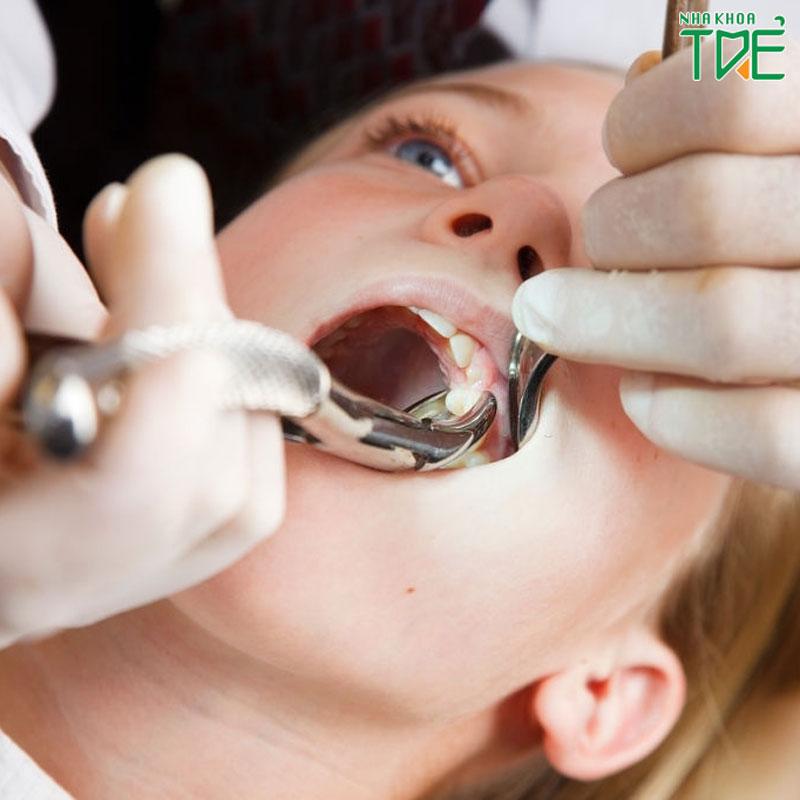 Nhổ răng nanh có ảnh hưởng gì không?